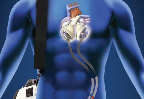 an artificial heart graphic